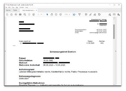 Anonimization of data